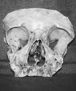 Fragmento del cráneo del Santo, venerado en Troyes, Francia.