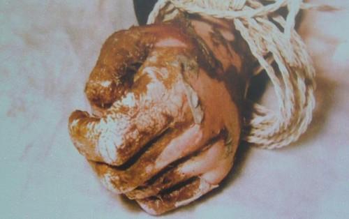 Detalle de la mano del Beato, con las señales de la tortura sufrida.