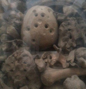 Cráneo trepanado de un santo mártir de Otranto.