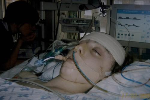 La actriz Lucy Hussey-Bergonzi en estado de coma profundo.