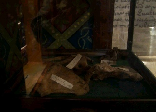 Reliquias del Santo en Drogheda, Irlanda.