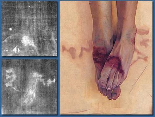 Detalle y recreación de las lesiones experimentadas en los pies por el Hombre de la Síndone.