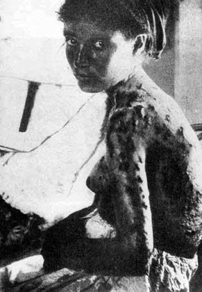 Mujer armenia con quemaduras y lesiones en el cuerpo, fruto de la tortura.